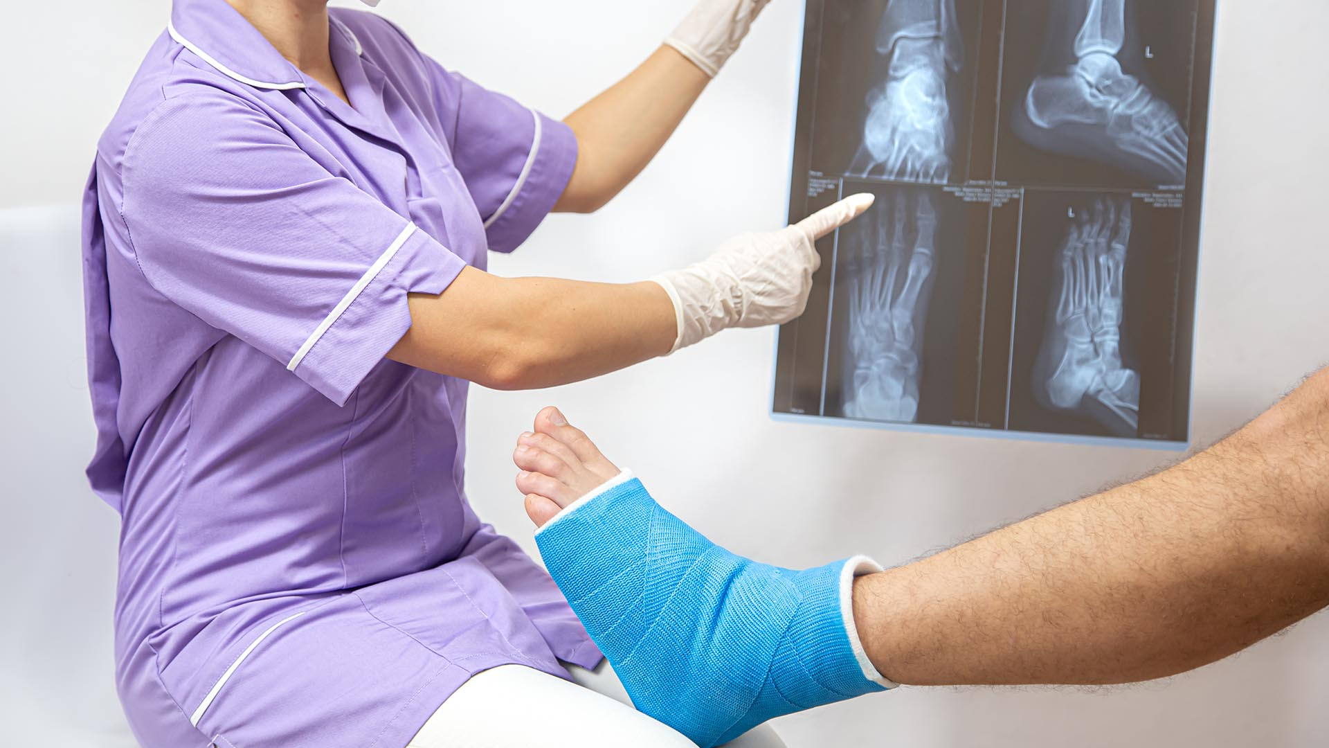 doctor holding x-ray talking to patient with fractured ankle